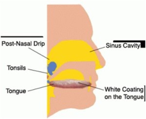 The back of tongue and throat are causes bad breath