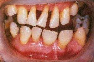 Periodontal disease 2