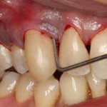 Periodontal disease bleeding gums