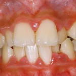 periodontal disease gingivitus
