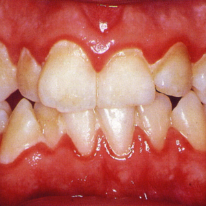 Gum disease (Periodontal disease) and Gingivitis